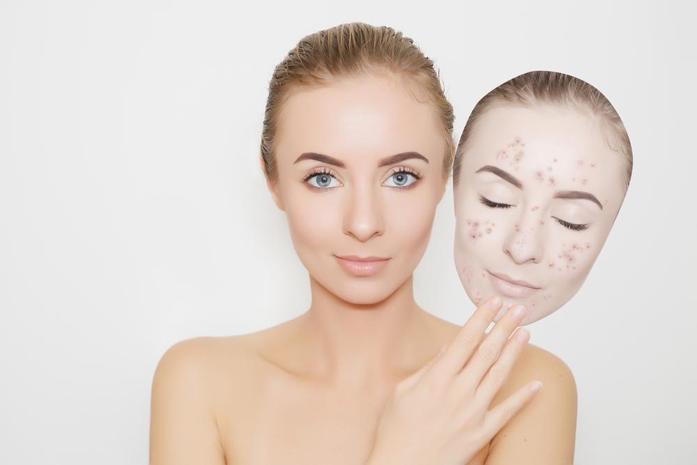 L acné est une maladie de la peau qui touche les adolescents mais également  les adultes. Très complexant, ce problème dermatologique donne du fil à  retordre ... 3345fddf4d5