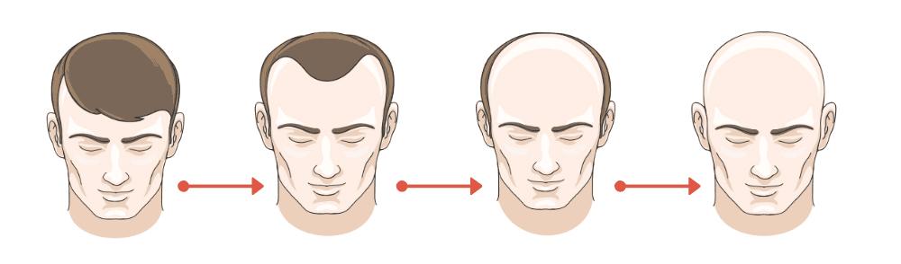 Les étapes de la calvitie chez l'homme