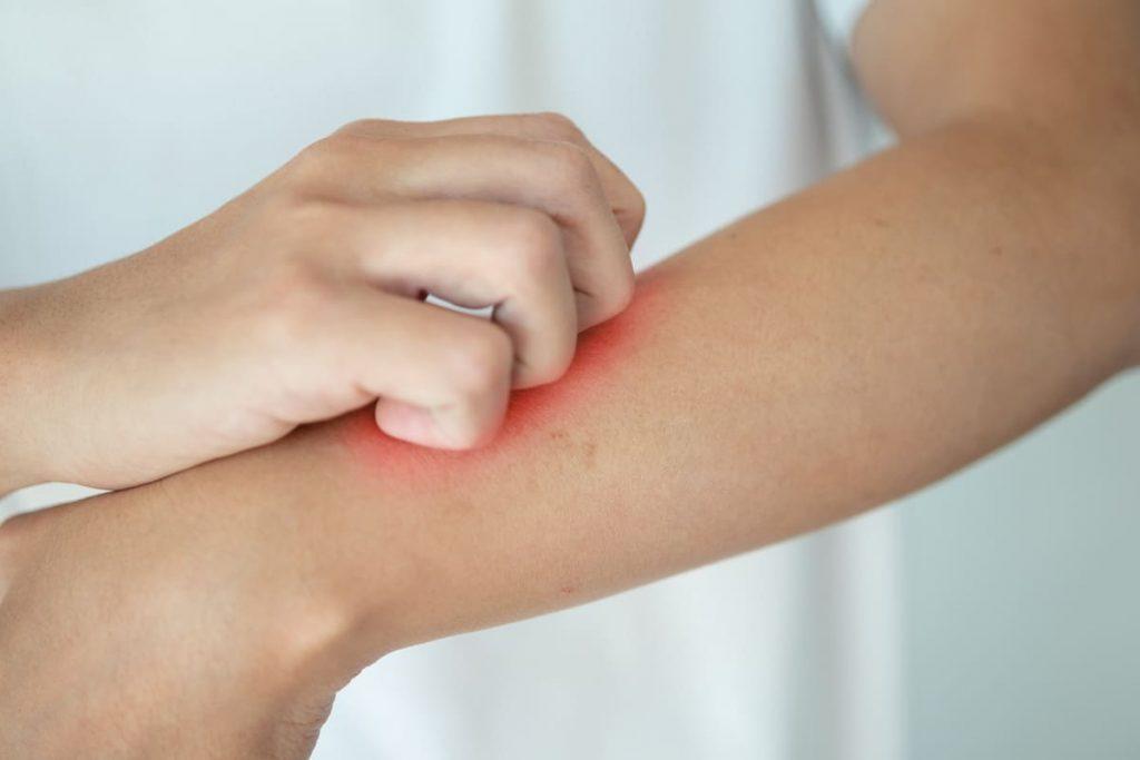 traiter le psoriasis