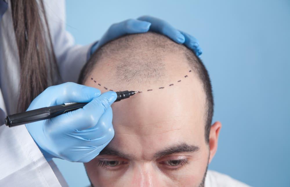 pratique de la greffe de cheveux